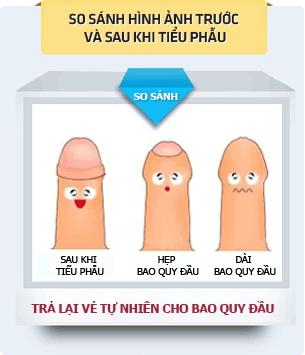 phuong-phap-phau-thuat-cat-bao-quy-dau-1